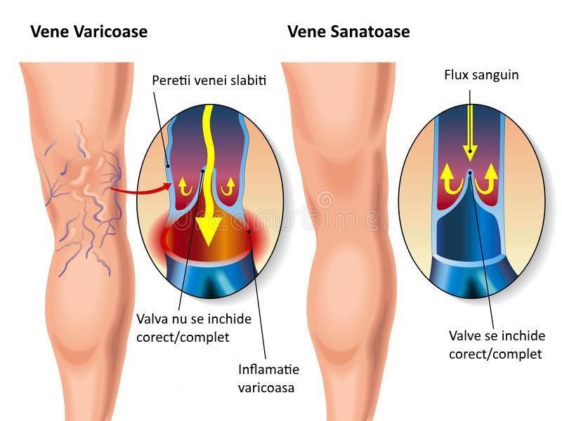 tratamentul venelor varicoase din vena pe picioarele de gimnastică)