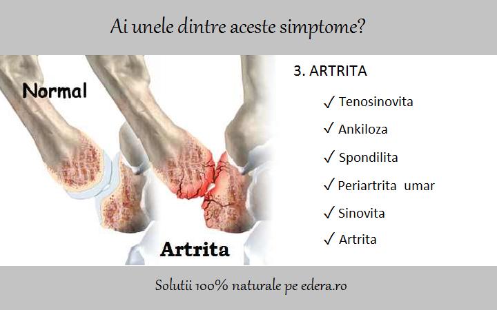 artrita semnelor articulare ale umărului