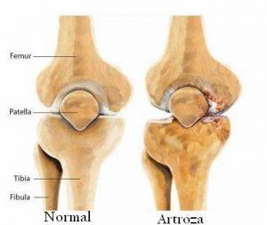 creuză articulară artroză)